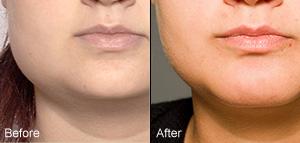Permanent numbness after facial lift